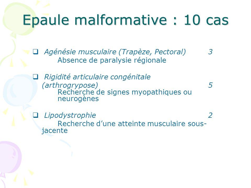 Epaule malformative : 10 cas Agénésie musculaire (Trapèze, Pectoral)3 Absence de paralysie régionale Rigidité articulaire congénitale (arthrogrypose)5