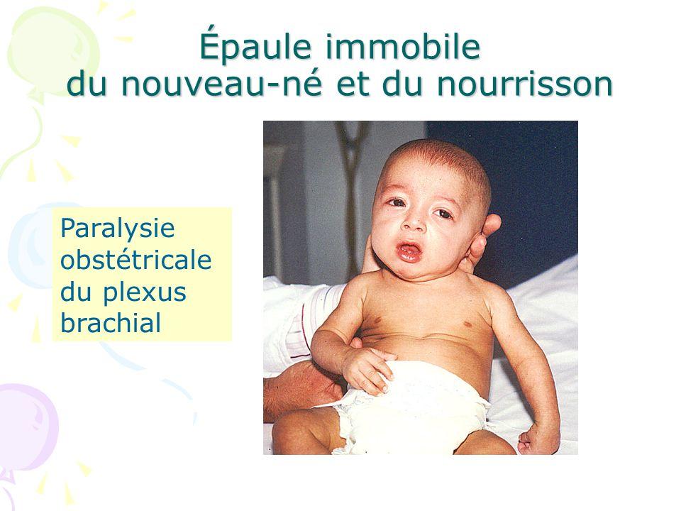 Épaule immobile du nouveau-né et du nourrisson Infection ou vaccin Fièvre Lymphocytose du LCR EMG anormal : 3 enfants - signes de dénervation de topographie radiculaire - seuils dexcitabilité - latences Fracture de la clavicule1 Pronation douloureuse1 Ostéoarthrite de lépaule1 Foetopathie infectieuse1 EMG normal : 4 enfants Pseudoparalysie