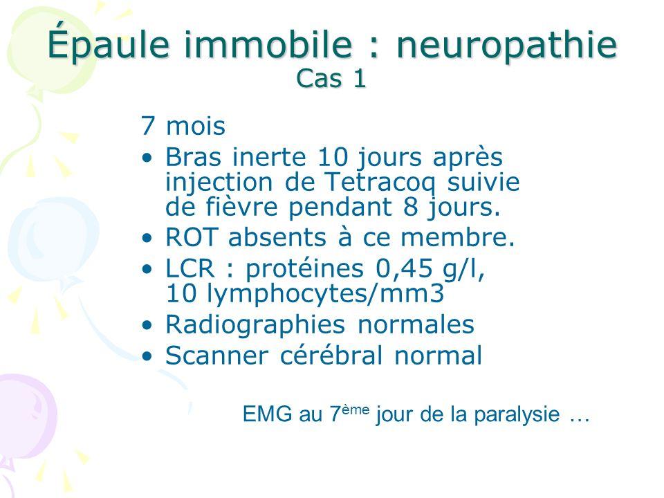 Epaule malformative : 10 cas Agénésie musculaire (Trapèze, Pectoral)3 Absence de paralysie régionale Rigidité articulaire congénitale (arthrogrypose)5 Recherche de signes myopathiques ou neurogènes Lipodystrophie2 Recherche dune atteinte musculaire sous- jacente