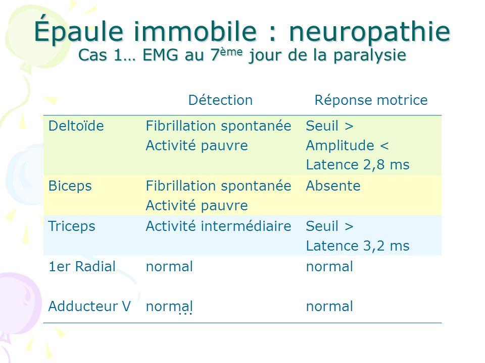 Épaule immobile : neuropathie Cas 1… EMG au 7 ème jour de la paralysie … DétectionRéponse motrice DeltoïdeFibrillation spontanée Activité pauvre Seuil