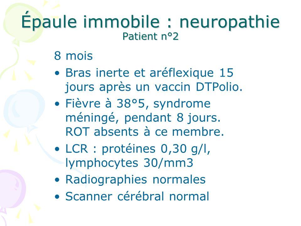Épaule immobile : neuropathie Patient n°2… EMG au 8 ème jour de la paralysie DétectionRéponse motrice Infra épineuxActivité intermédiaire PUM polyphasiques Seuil >, Latence 5,8 ms Polyphasique DeltoïdeActivité pauvreSeuil >, Latence 3,4 ms BicepsActivité pauvreSeuil >, Latence 3,2 ms Polyphasique TricepsnormalSeuil >, Latence 3,8 ms 1er RadialActivité intermédiaire PUM polyphasiques Seuil >, Latence 4,8 ms Polyphasique Adducteur VActivité pauvrenormale