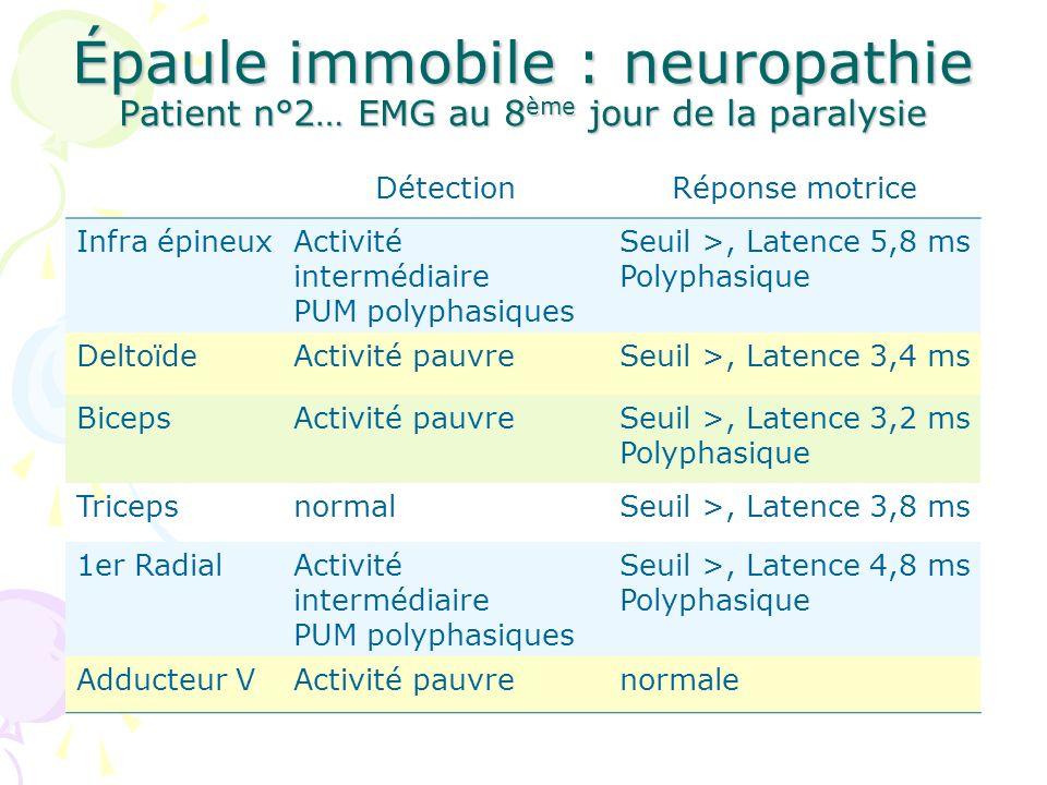 Épaule immobile : neuropathie Patient n°2… EMG au 8 ème jour de la paralysie DétectionRéponse motrice Infra épineuxActivité intermédiaire PUM polyphas
