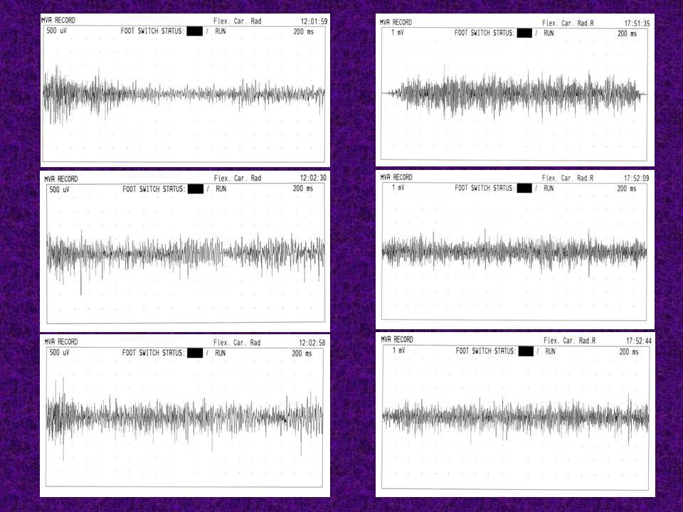 Becker : décrément > 25 % Stimulation du nerf ulnaire au poignet : 40 chocs à 10 Hz Détection : abducteur du V Variation (%) de la taille de la réponse M entre le 1 er et le 40 e choc