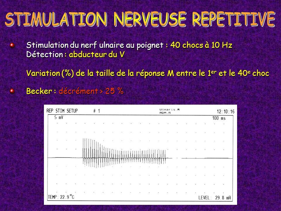 Becker : décrément > 25 % Stimulation du nerf ulnaire au poignet : 40 chocs à 10 Hz Détection : abducteur du V Variation (%) de la taille de la répons