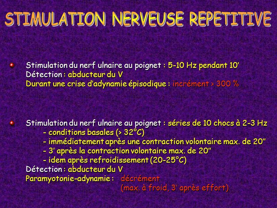 Stimulation du nerf ulnaire au poignet : séries de 10 chocs à 2-3 Hz - conditions basales (> 32°C) - immédiatement après une contraction volontaire ma