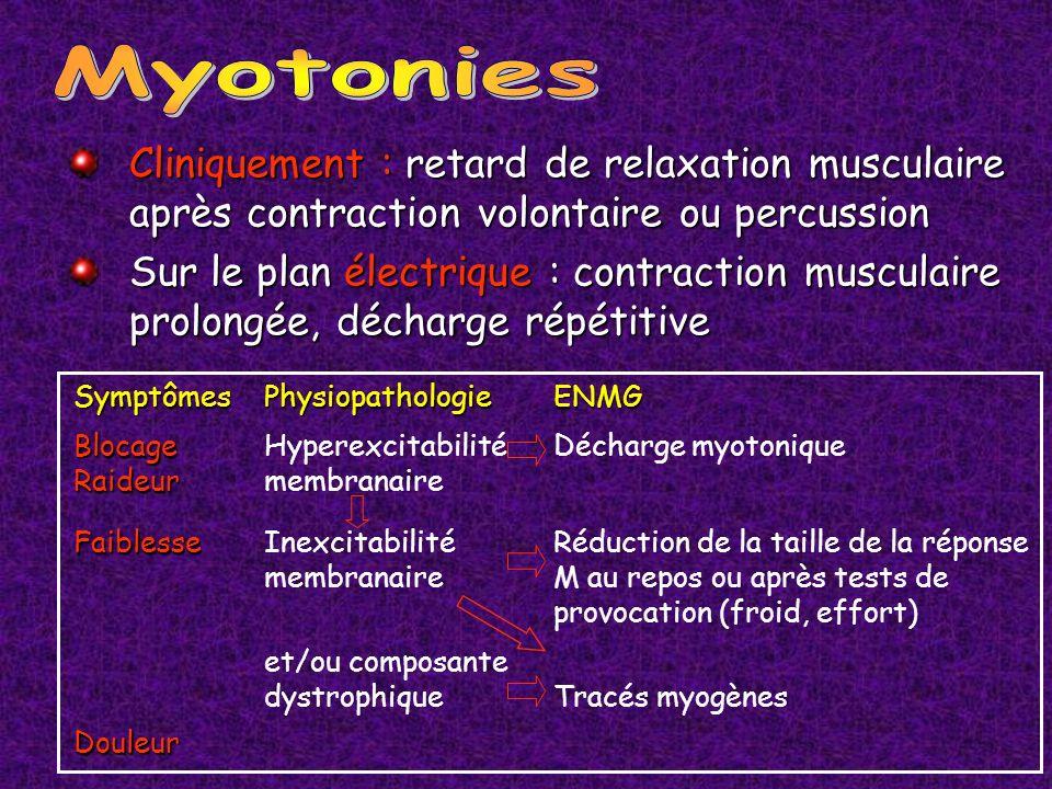 Cliniquement : retard de relaxation musculaire après contraction volontaire ou percussion Sur le plan électrique : contraction musculaire prolongée, d