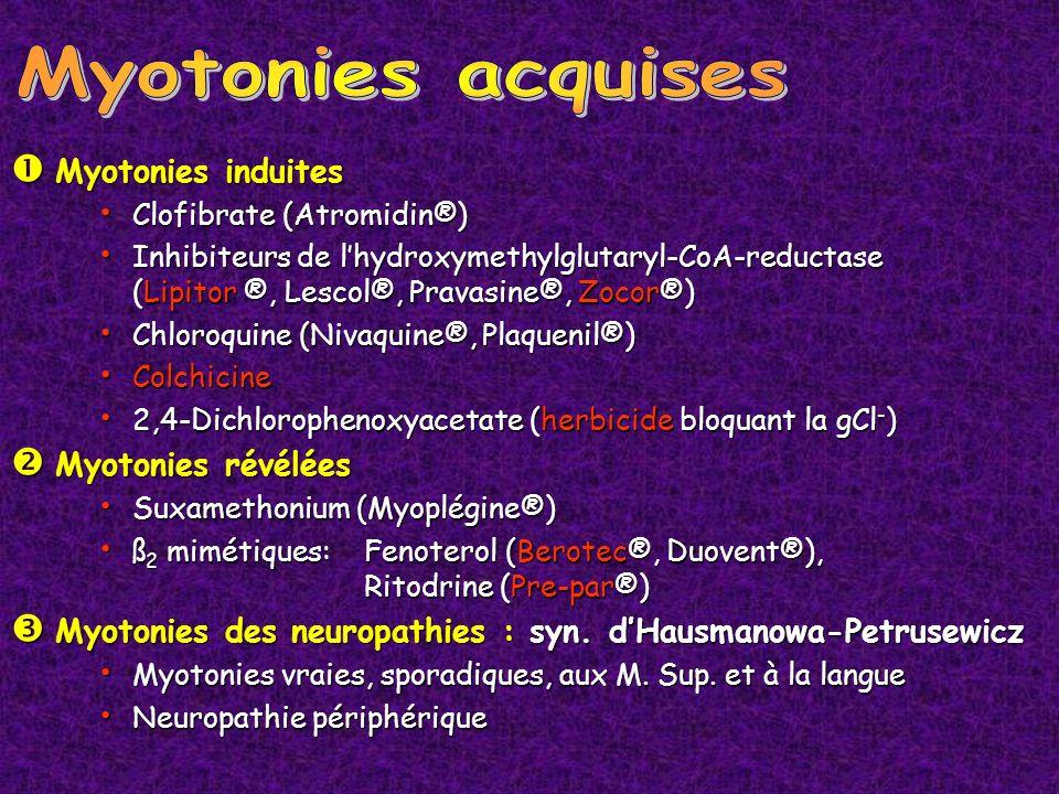 Myotonies induites Myotonies induites Clofibrate (Atromidin®) Clofibrate (Atromidin®) Inhibiteurs de lhydroxymethylglutaryl-CoA-reductase (Lipitor ®,