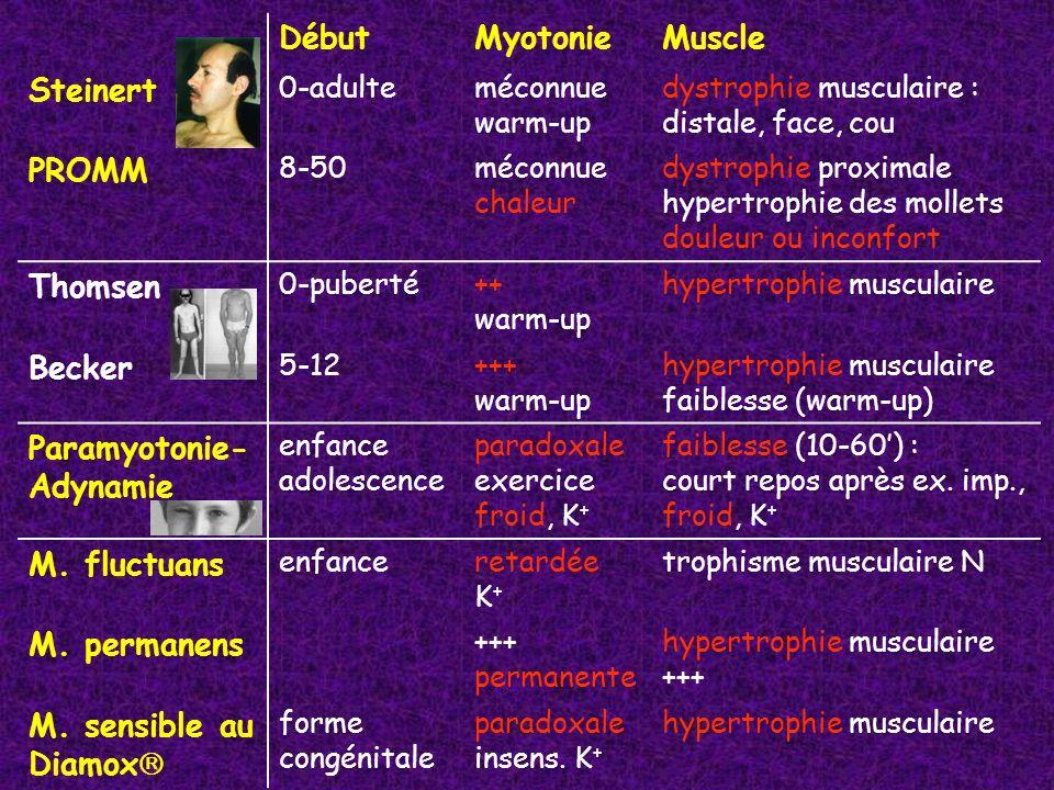 DébutMyotonieMuscle Steinert 0-adulteméconnue warm-up dystrophie musculaire : distale, face, cou PROMM 8-50méconnue chaleur dystrophie proximale hyper