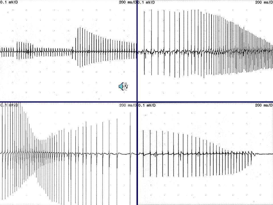 Décharge myotonique Décharge répétitive complexe Décharge neuromyotonique Fréquence 20-80 Hz5-100 Hz150-300 Hz Amplitude Fréquence dim.