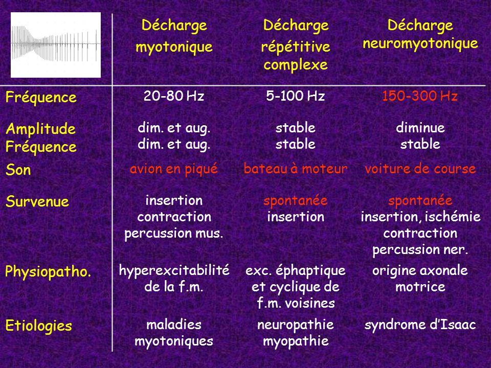 Décharge myotonique Décharge répétitive complexe Décharge neuromyotonique Fréquence 20-80 Hz5-100 Hz150-300 Hz Amplitude Fréquence dim. et aug. stable