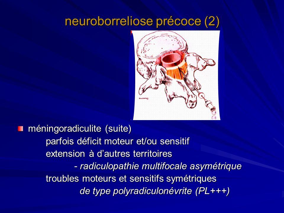 neuroborreliose précoce (2) méningoradiculite (suite) parfois déficit moteur et/ou sensitif extension à dautres territoires - radiculopathie multifoca