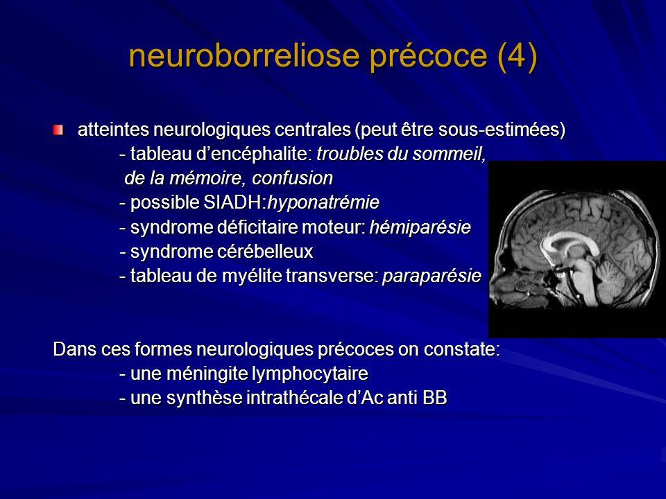 neuroborreliose précoce (4) atteintes neurologiques centrales (peut être sous-estimées) - tableau dencéphalite: troubles du sommeil, de la mémoire, co