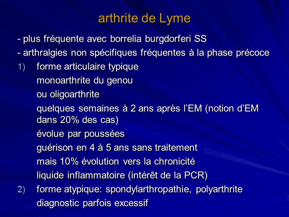 arthrite de Lyme - plus fréquente avec borrelia burgdorferi SS - arthralgies non spécifiques fréquentes à la phase précoce 1) forme articulaire typiqu