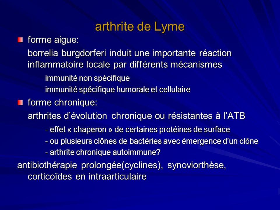 arthrite de Lyme forme aigue: borrelia burgdorferi induit une importante réaction inflammatoire locale par différents mécanismes immunité non spécifiq