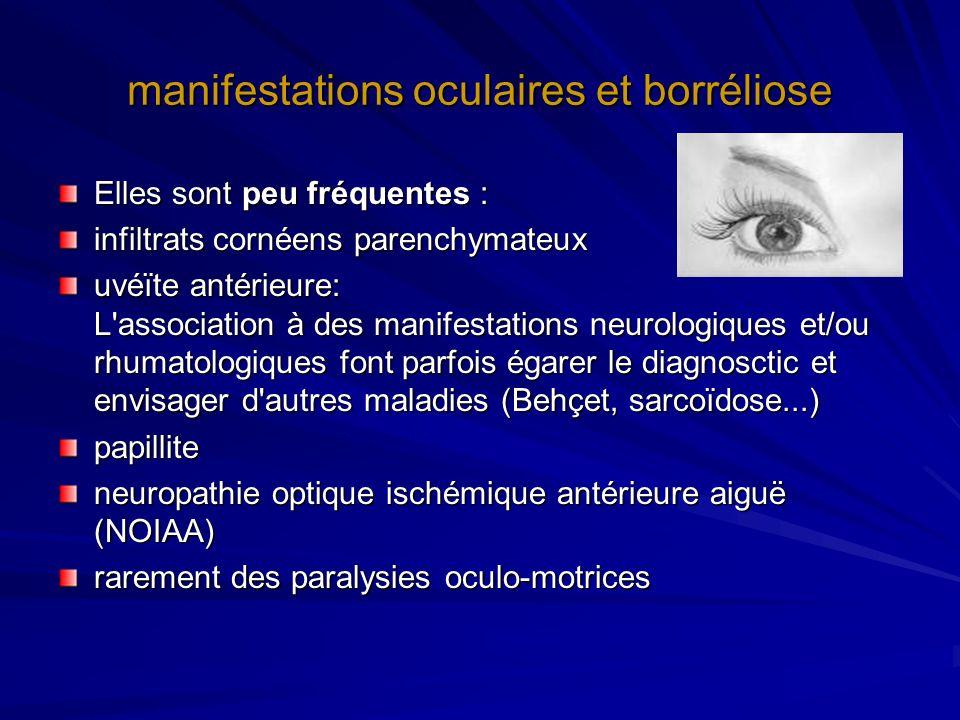 manifestations oculaires et borréliose Elles sont peu fréquentes : infiltrats cornéens parenchymateux uvéïte antérieure: L'association à des manifesta