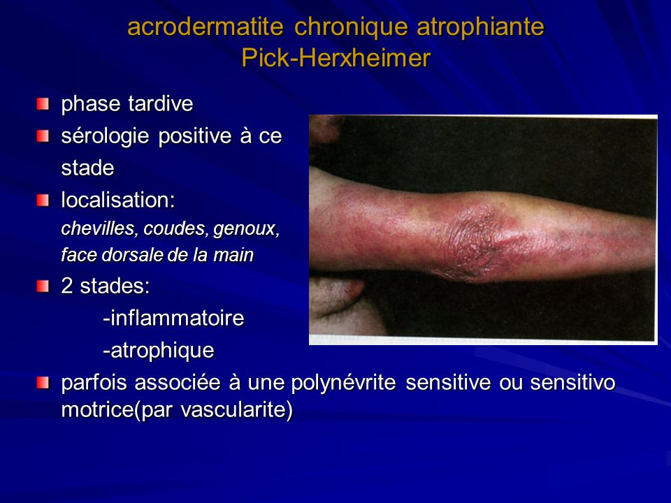 arthrite de Lyme - plus fréquente avec borrelia burgdorferi SS - arthralgies non spécifiques fréquentes à la phase précoce 1) forme articulaire typique monoarthrite du genou ou oligoarthrite quelques semaines à 2 ans après lEM (notion dEM dans 20% des cas) évolue par poussées guérison en 4 à 5 ans sans traitement mais 10% évolution vers la chronicité liquide inflammatoire (intérêt de la PCR) 2) forme atypique: spondylarthropathie, polyarthrite diagnostic parfois excessif