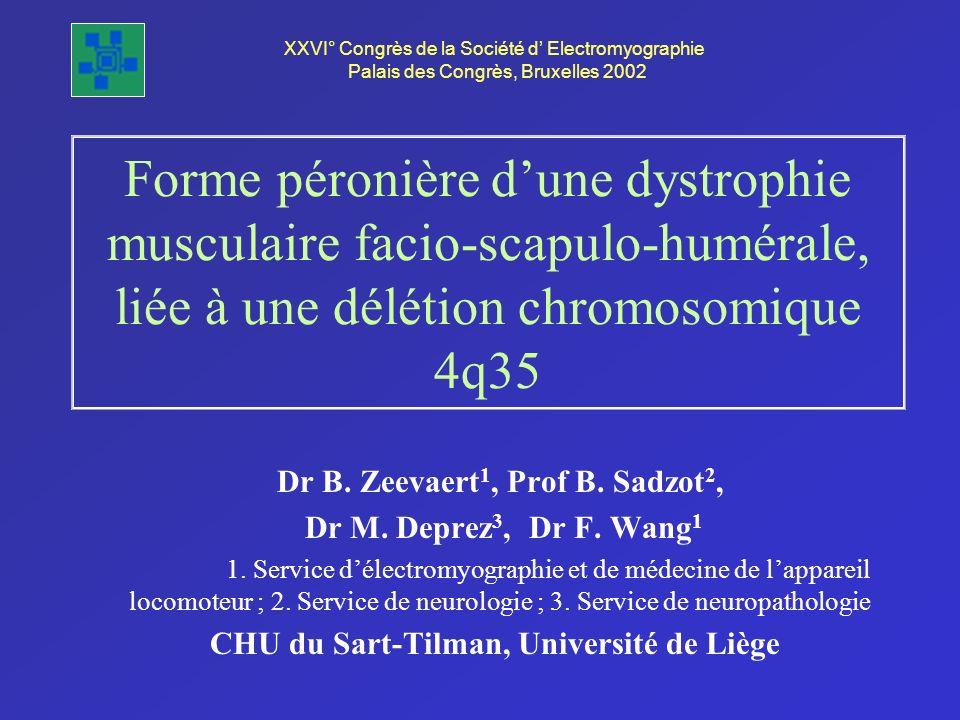 Forme péronière dune dystrophie musculaire facio-scapulo-humérale, liée à une délétion chromosomique 4q35 Dr B. Zeevaert 1, Prof B. Sadzot 2, Dr M. De