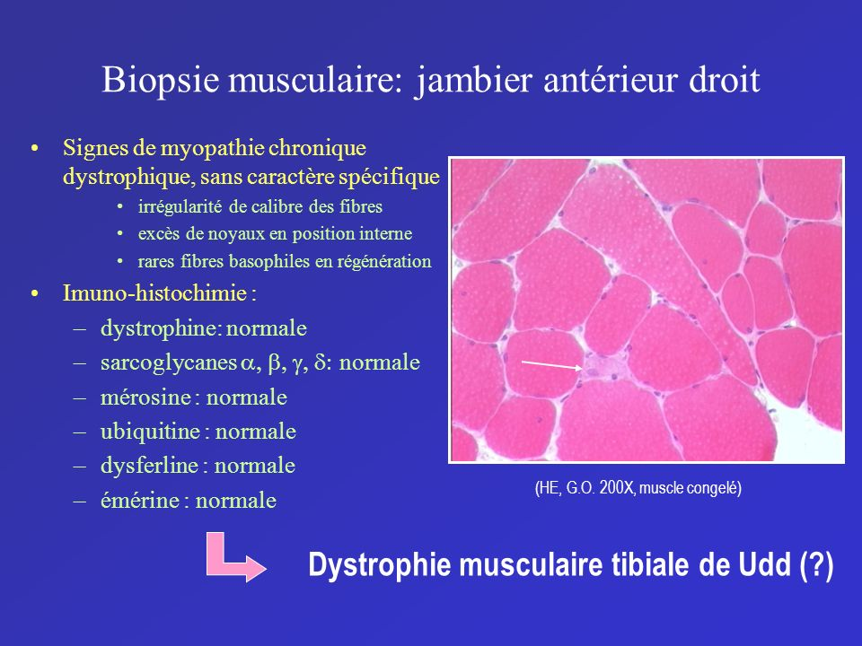 Biopsie musculaire: jambier antérieur droit Signes de myopathie chronique dystrophique, sans caractère spécifique irrégularité de calibre des fibres e