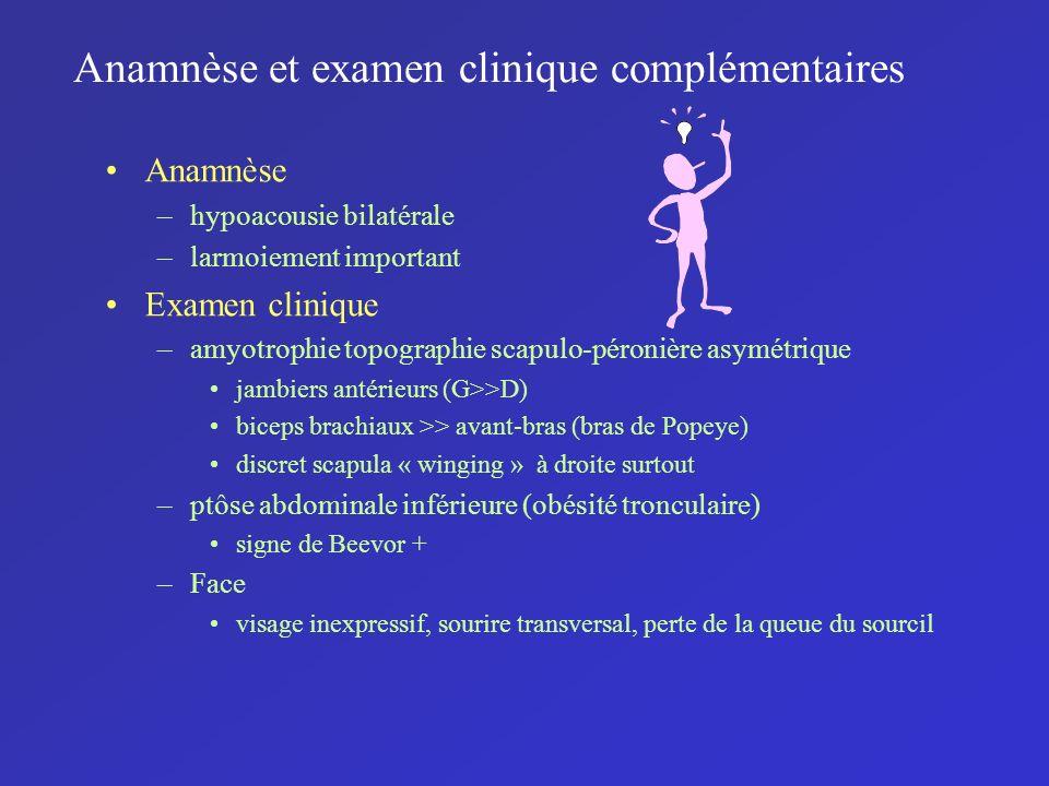 Anamnèse et examen clinique complémentaires Anamnèse –hypoacousie bilatérale –larmoiement important Examen clinique –amyotrophie topographie scapulo-p