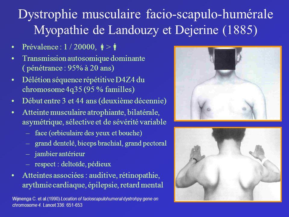 Dystrophie musculaire facio-scapulo-humérale Myopathie de Landouzy et Dejerine (1885) Prévalence : 1 / 20000, > Transmission autosomique dominante ( p