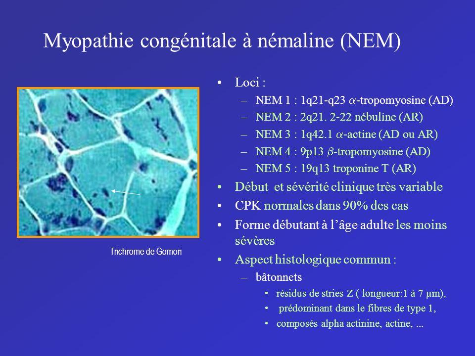 Myopathie congénitale à némaline (NEM) Loci : –NEM 1 : 1q21-q23 -tropomyosine (AD) –NEM 2 : 2q21. 2-22 nébuline (AR) –NEM 3 : 1q42.1 -actine (AD ou AR