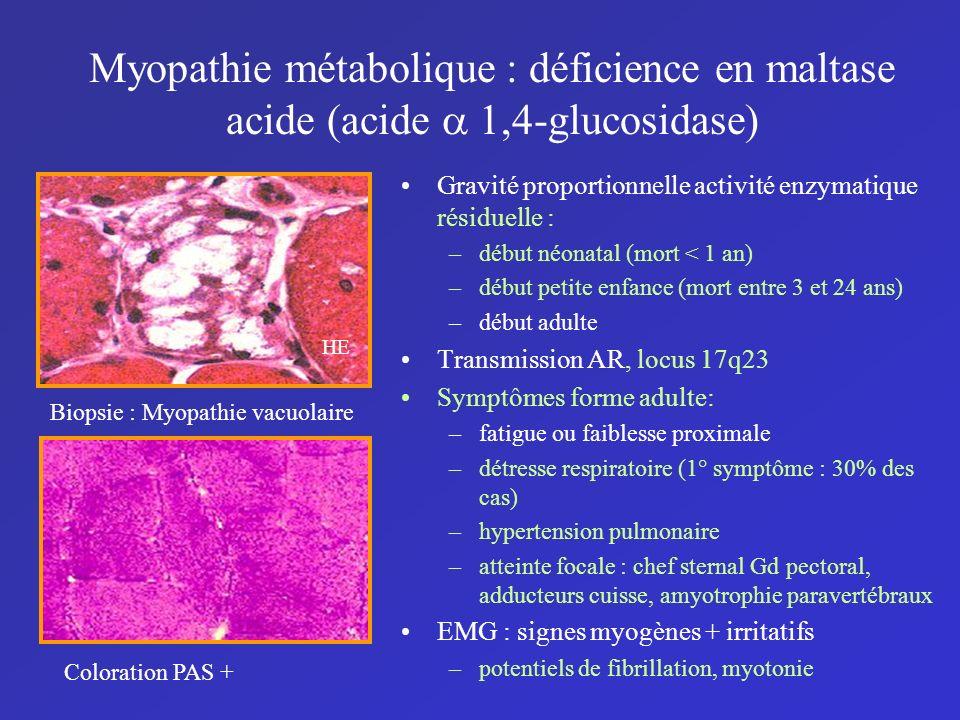 Myopathie métabolique : déficience en maltase acide (acide 1,4-glucosidase) Gravité proportionnelle activité enzymatique résiduelle : –début néonatal