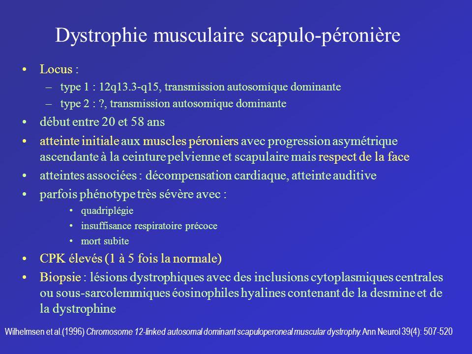 Dystrophie musculaire scapulo-péronière Locus : –type 1 : 12q13.3-q15, transmission autosomique dominante –type 2 : ?, transmission autosomique domina