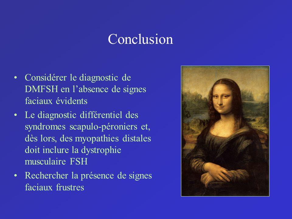 Conclusion Considérer le diagnostic de DMFSH en labsence de signes faciaux évidents Le diagnostic différentiel des syndromes scapulo-péroniers et, dès