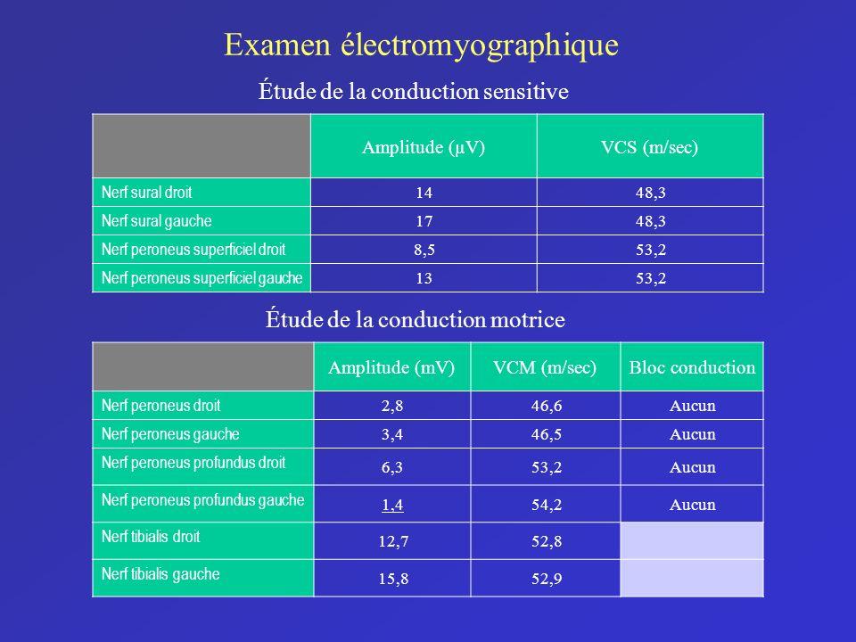Amplitude (µV)VCS (m/sec) Nerf sural droit 1448,3 Nerf sural gauche 1748,3 Nerf peroneus superficiel droit 8,553,2 Nerf peroneus superficiel gauche 13