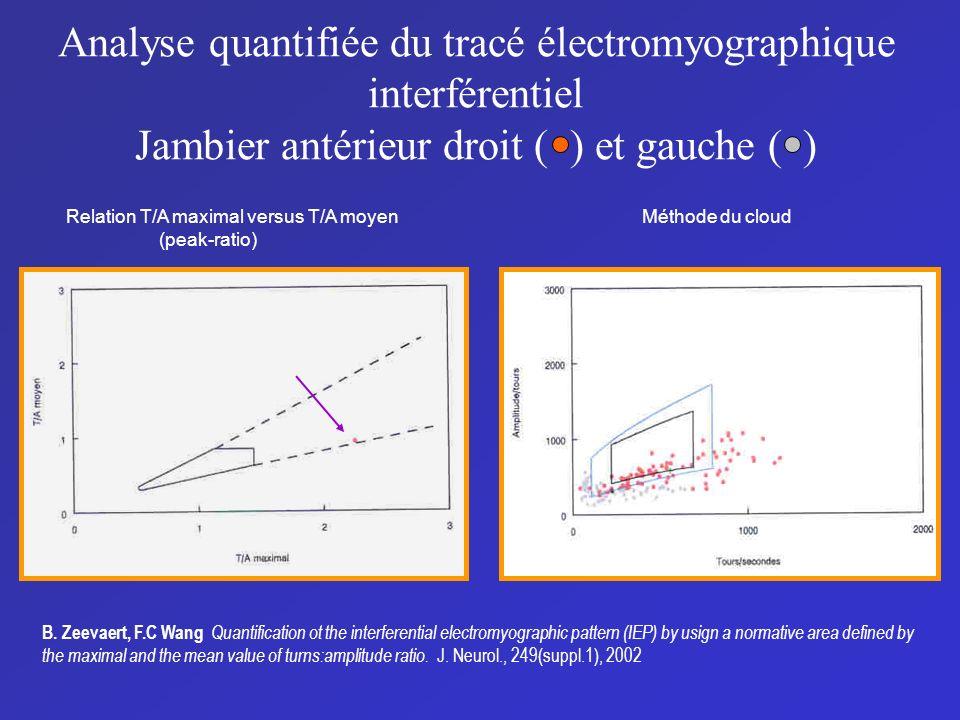 Analyse quantifiée du tracé électromyographique interférentiel Jambier antérieur droit ( ) et gauche ( ) Relation T/A maximal versus T/A moyen (peak-r