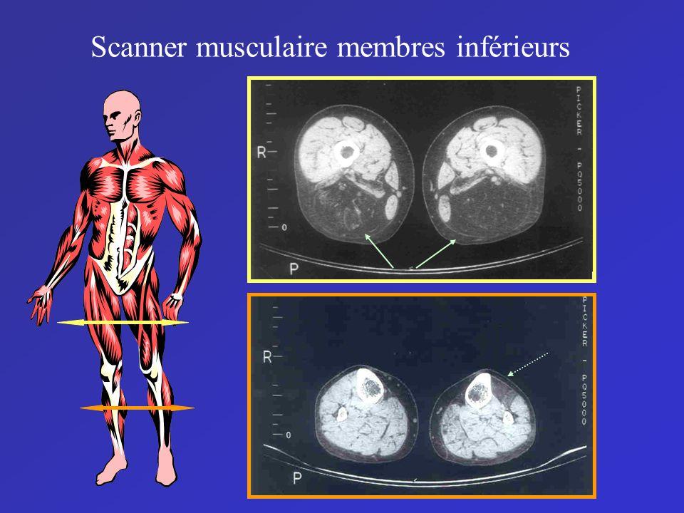 Scanner musculaire membres inférieurs