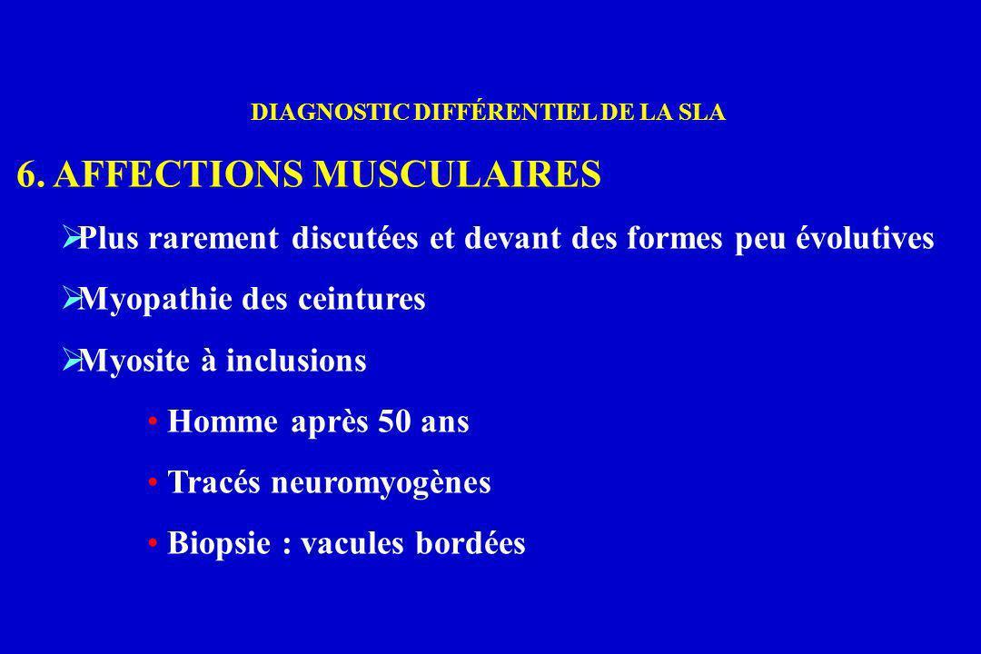 DIAGNOSTIC DIFFÉRENTIEL DE LA SLA 6. AFFECTIONS MUSCULAIRES Plus rarement discutées et devant des formes peu évolutives Myopathie des ceintures Myosit