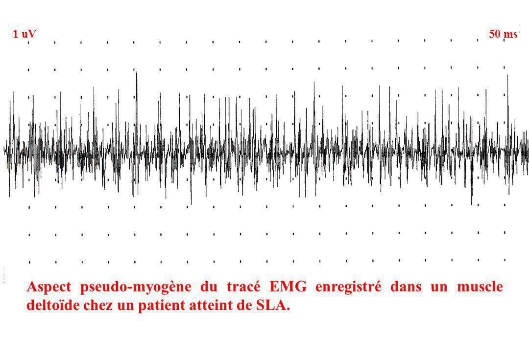 Aspect pseudo-myogène du tracé EMG enregistré dans un muscle deltoïde chez un patient atteint de SLA. 1 uV50 ms