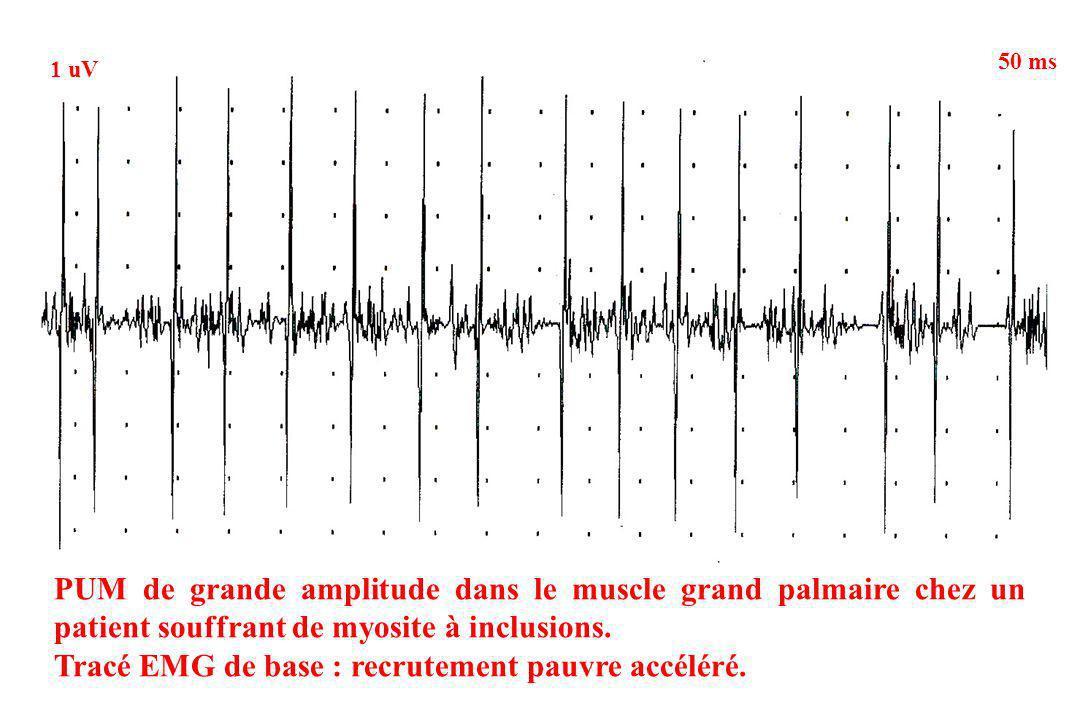 PUM de grande amplitude dans le muscle grand palmaire chez un patient souffrant de myosite à inclusions. Tracé EMG de base : recrutement pauvre accélé