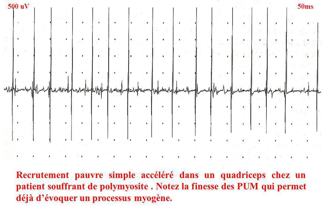 Recrutement pauvre simple accéléré dans un quadriceps chez un patient souffrant de polymyosite. Notez la finesse des PUM qui permet déjà dévoquer un p