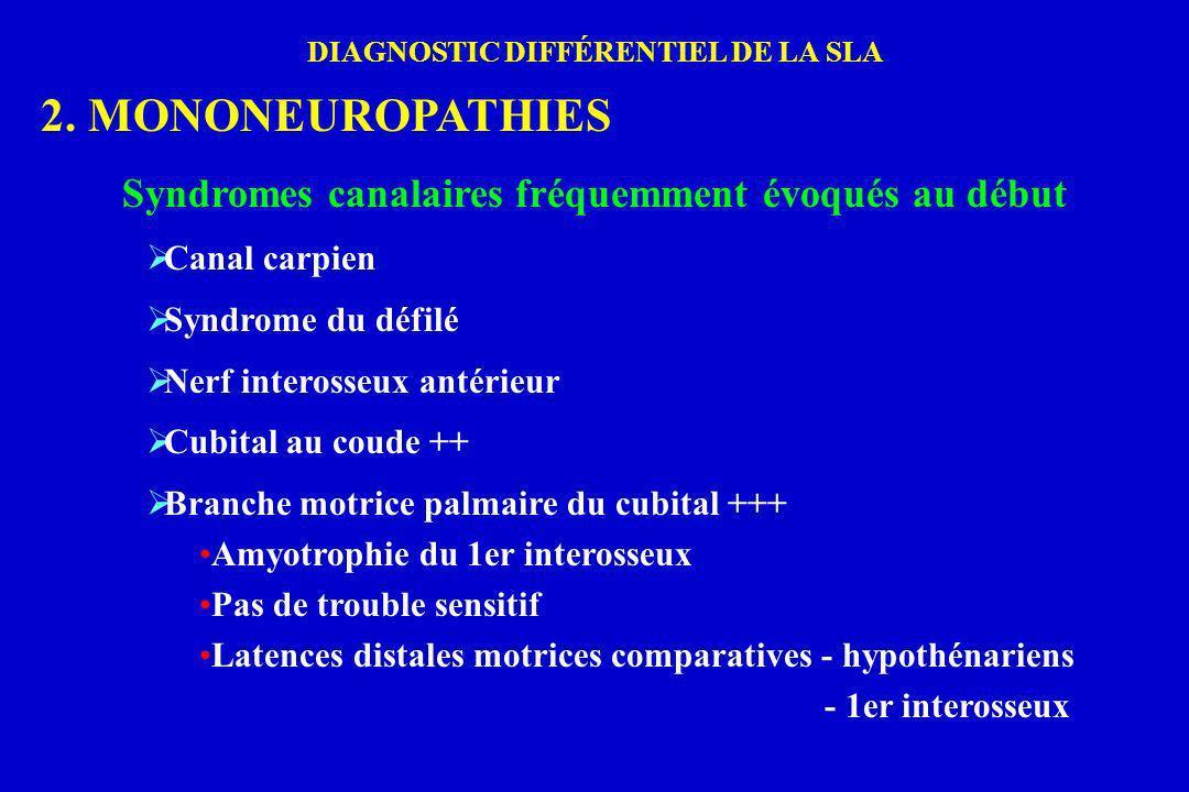 DIAGNOSTIC DIFFÉRENTIEL DE LA SLA 2. MONONEUROPATHIES Syndromes canalaires fréquemment évoqués au début Canal carpien Syndrome du défilé Nerf inteross