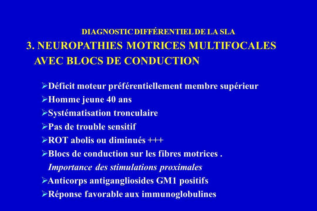 DIAGNOSTIC DIFFÉRENTIEL DE LA SLA 3. NEUROPATHIES MOTRICES MULTIFOCALES AVEC BLOCS DE CONDUCTION Déficit moteur préférentiellement membre supérieur Ho