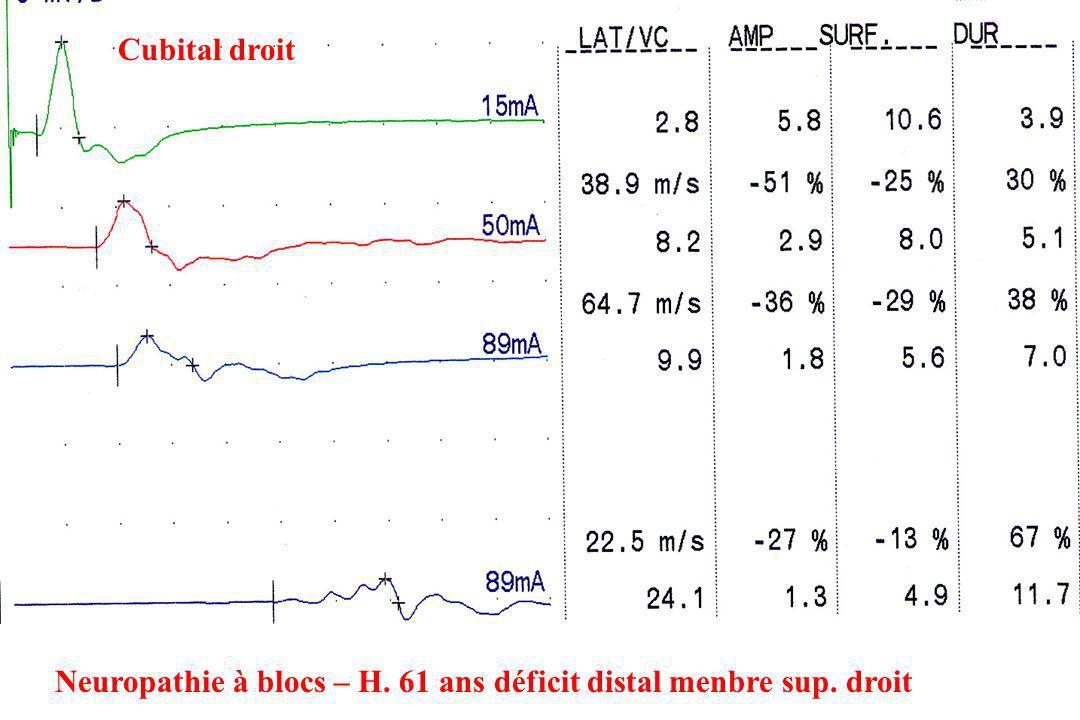 Cubital droit Neuropathie à blocs – H. 61 ans déficit distal menbre sup. droit
