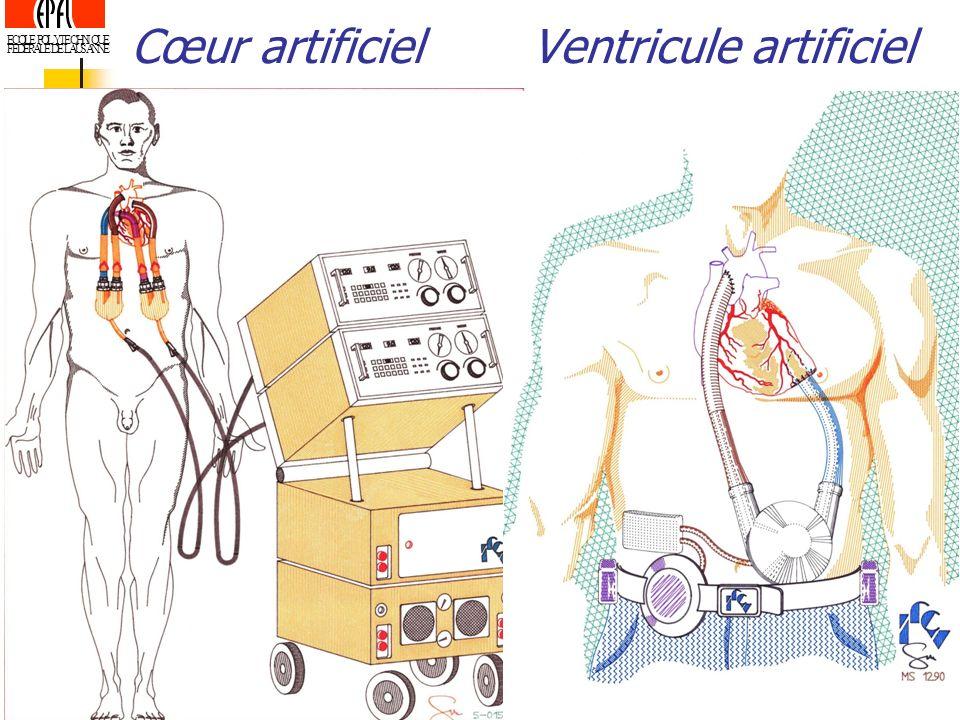 ECOLE POLYTECHNIQUE FEDERALE DE LAUSANNE Cœur artificielVentricule artificiel