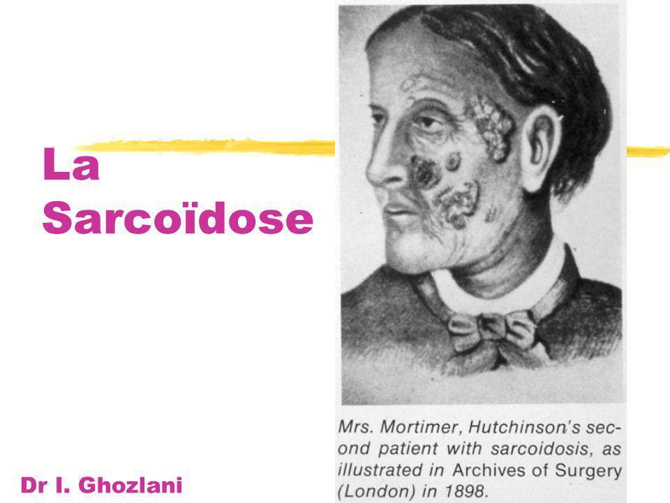 La Sarcoïdose Dr I. Ghozlani