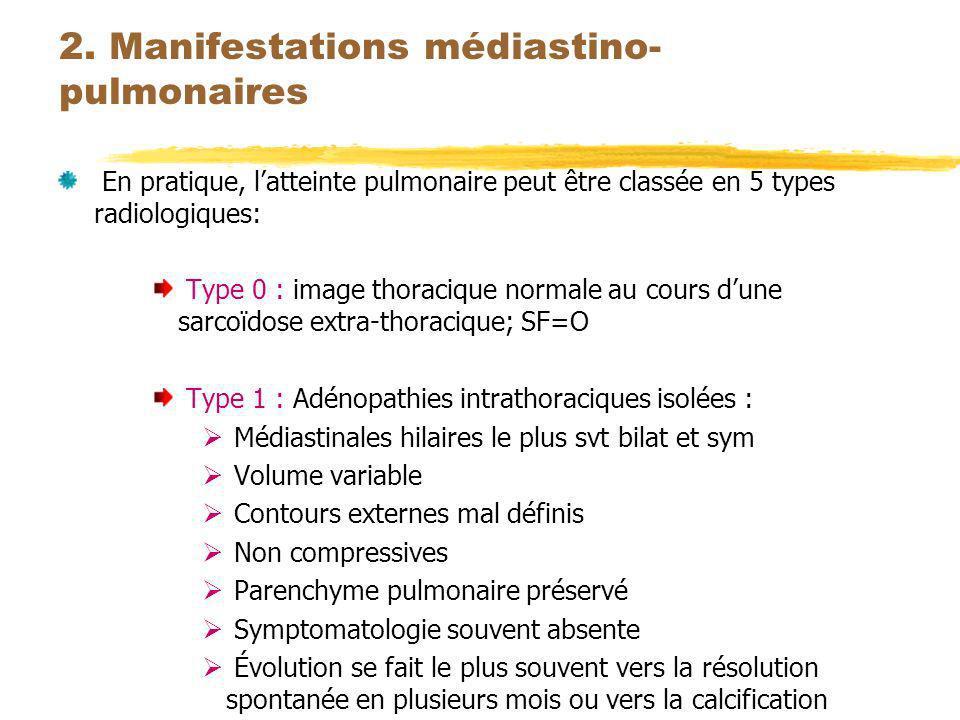 2. Manifestations médiastino- pulmonaires En pratique, latteinte pulmonaire peut être classée en 5 types radiologiques: Type 0 : image thoracique norm