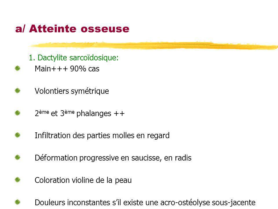 a/ Atteinte osseuse 1. Dactylite sarcoïdosique: Main+++ 90% cas Volontiers symétrique 2 ème et 3 ème phalanges ++ Infiltration des parties molles en r