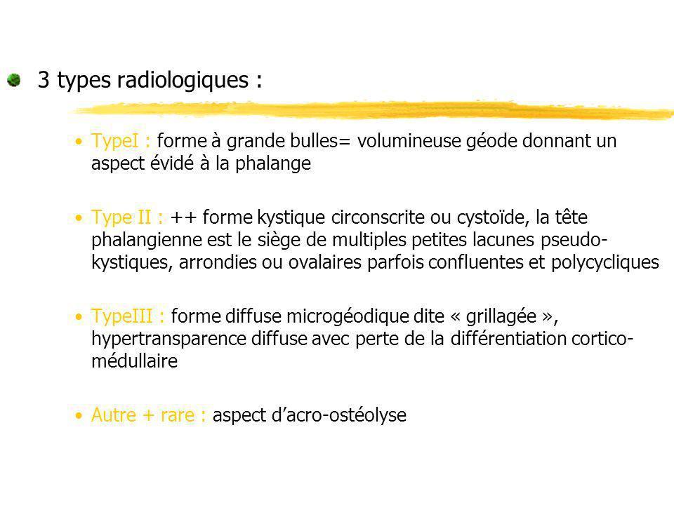 3 types radiologiques : TypeI : forme à grande bulles= volumineuse géode donnant un aspect évidé à la phalange Type II : ++ forme kystique circonscrit