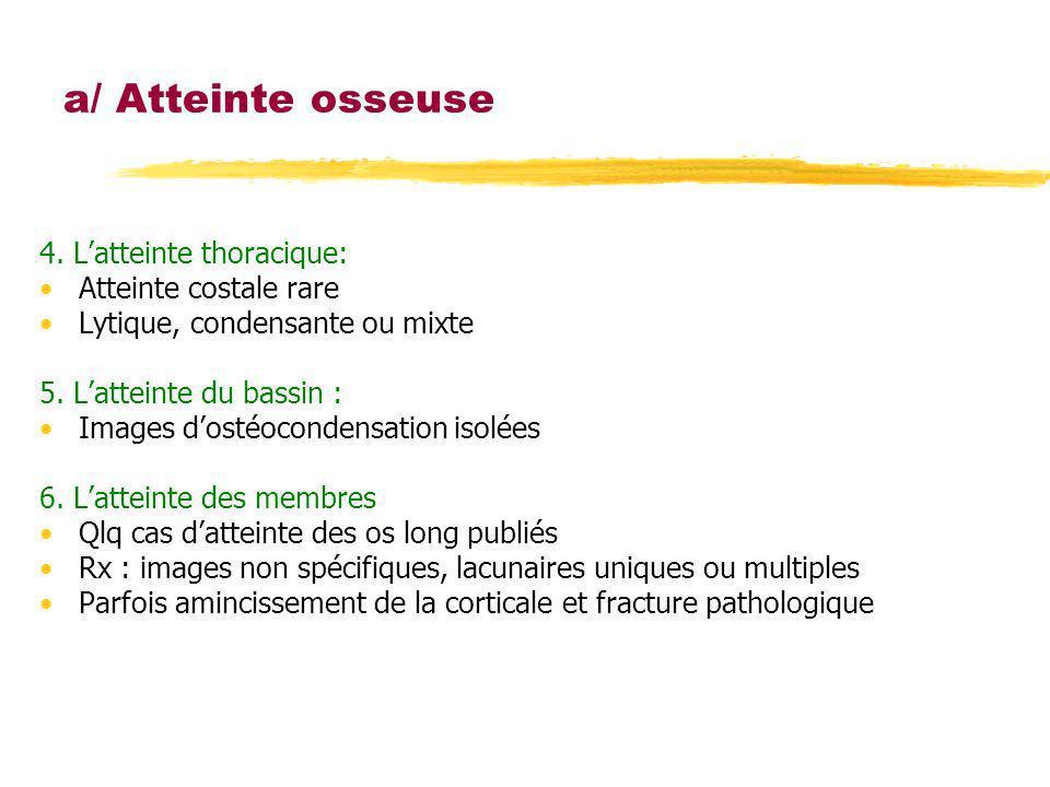 4. Latteinte thoracique: Atteinte costale rare Lytique, condensante ou mixte 5. Latteinte du bassin : Images dostéocondensation isolées 6. Latteinte d