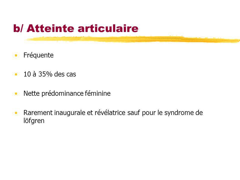 b/ Atteinte articulaire Fréquente 10 à 35% des cas Nette prédominance féminine Rarement inaugurale et révélatrice sauf pour le syndrome de löfgren