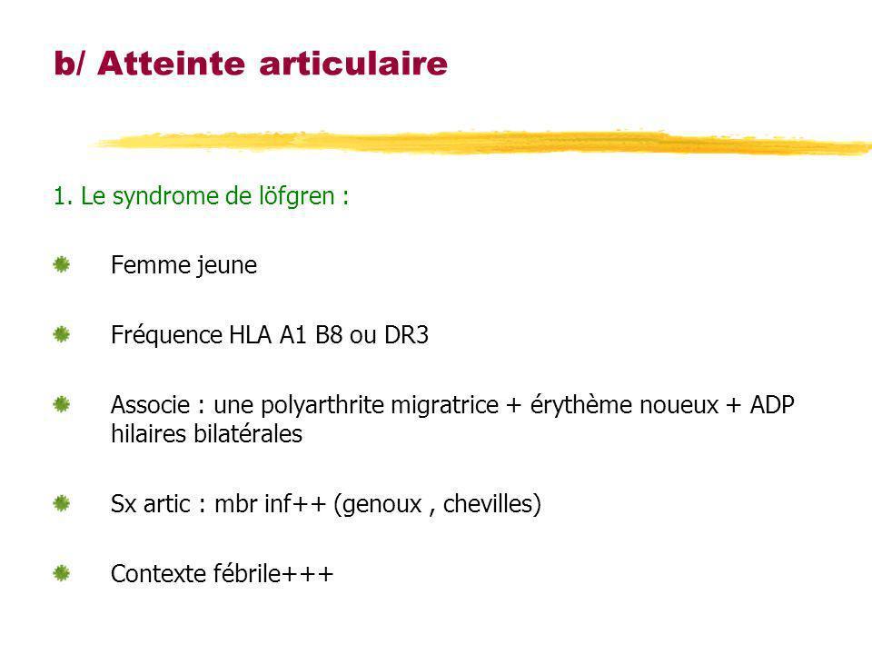 b/ Atteinte articulaire 1. Le syndrome de löfgren : Femme jeune Fréquence HLA A1 B8 ou DR3 Associe : une polyarthrite migratrice + érythème noueux + A