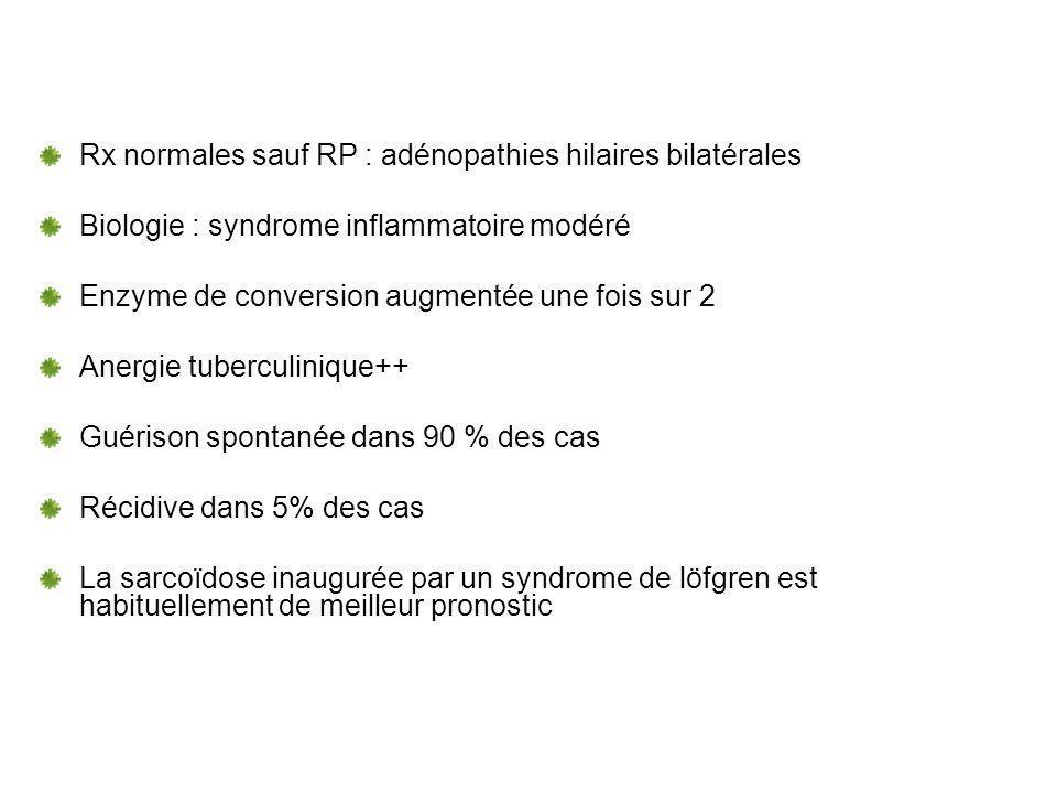 Rx normales sauf RP : adénopathies hilaires bilatérales Biologie : syndrome inflammatoire modéré Enzyme de conversion augmentée une fois sur 2 Anergie