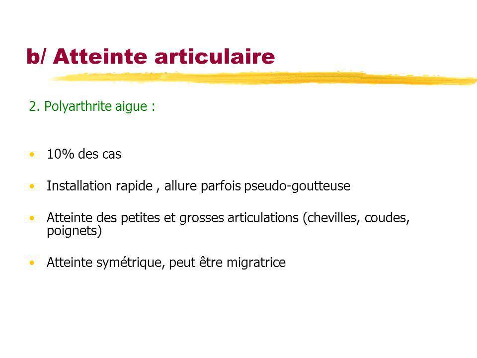 b/ Atteinte articulaire 2. Polyarthrite aigue : 10% des cas Installation rapide, allure parfois pseudo-goutteuse Atteinte des petites et grosses artic