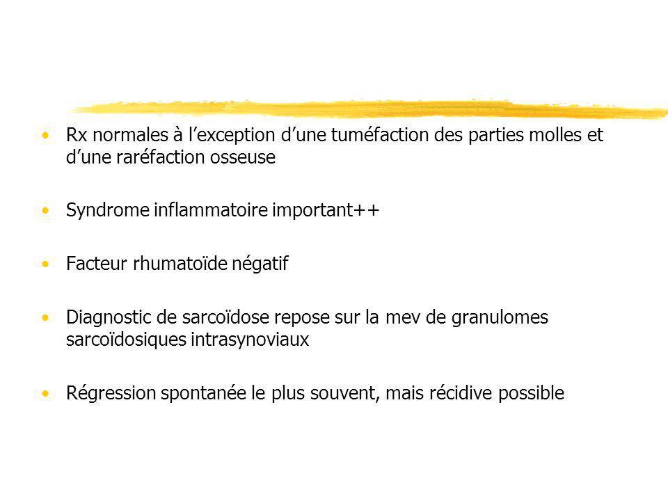 Rx normales à lexception dune tuméfaction des parties molles et dune raréfaction osseuse Syndrome inflammatoire important++ Facteur rhumatoïde négatif