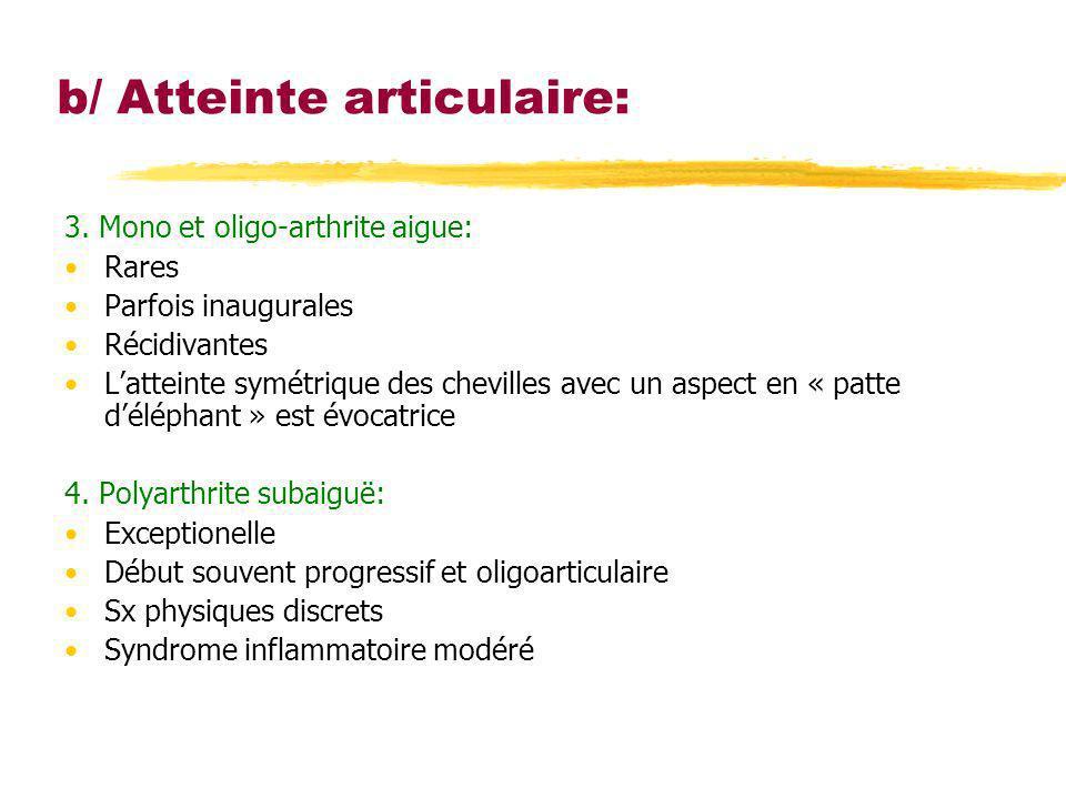 b/ Atteinte articulaire: 3. Mono et oligo-arthrite aigue: Rares Parfois inaugurales Récidivantes Latteinte symétrique des chevilles avec un aspect en